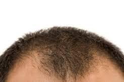 生え際の髪の毛を増やす治療はあるの?【静岡の悩み】
