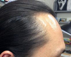 髪の毛増やすのは20代の方が難しい?簡単?【静岡の悩み】