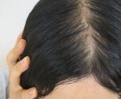 頭髪再生医療の治療する女の悩み?30代編【静岡の悩み】