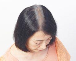 頭髪再生医療の治療する女の悩み?50代編【静岡の悩み】