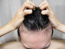 髪が抜けるから洗わないも無駄!(三島市男性の悩み)