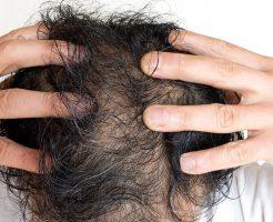 髪が少ないから増やす治療はいつ開始すべき?【静岡の悩み】