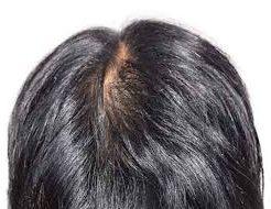 分け目の髪が薄い男の悩みは広範囲?【静岡】